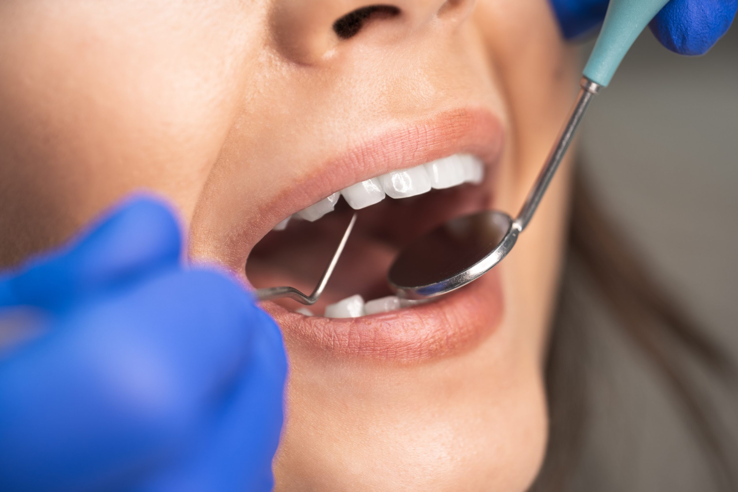 smiling beautiful happy woman patient examined by dentist in blue gloves using dental mirror and scaler sitting in dental clinic close up.